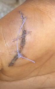 miracle-bullet-healing